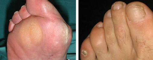 foot hard skin problems